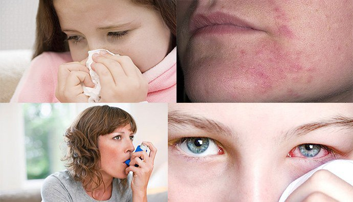 проявление аллергии летом