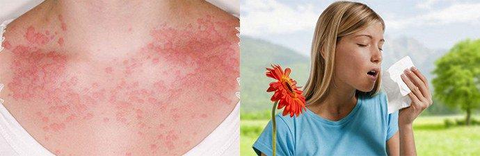 Настой лаврового листа при аллергии