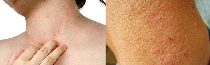 кожные проявления аллергии