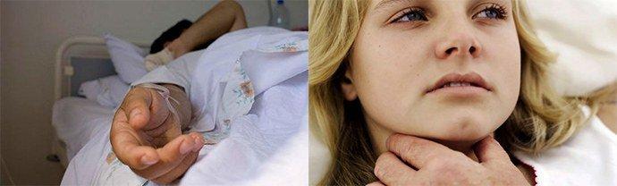 Какие уколы делают при аллергии