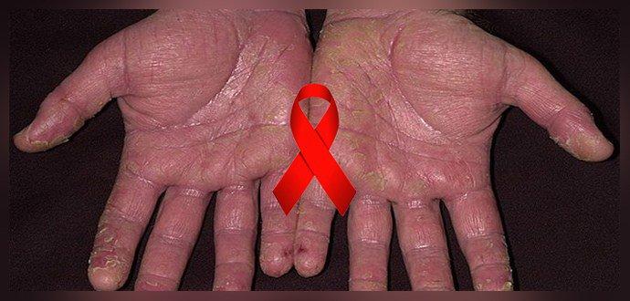 Псориаз и ВИЧ