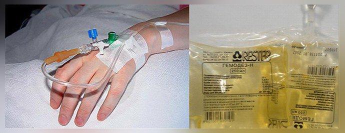 Лечение гемодезом