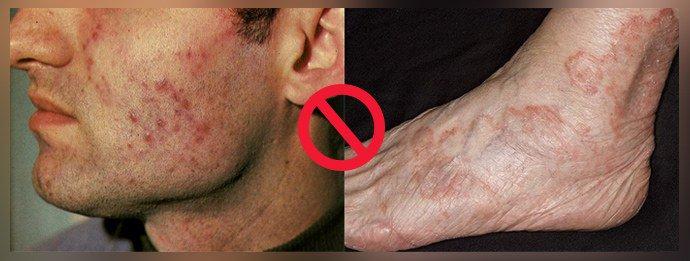 Туберкулезная инфекция кожи, вирусные поражения кожи