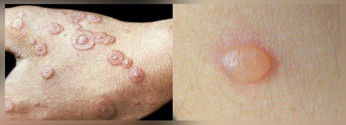 Подавление кожных аллергических реакций