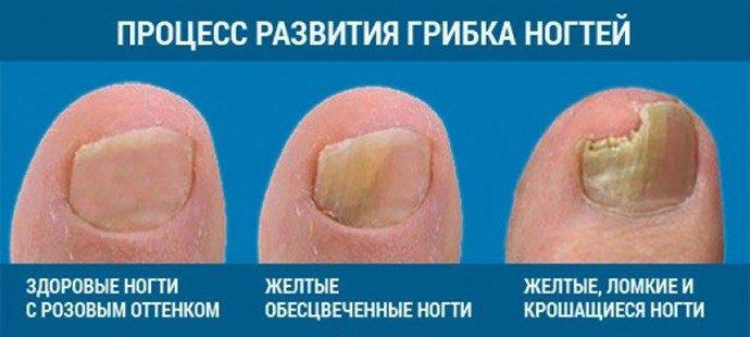 Стадии развития ногтевого грибка