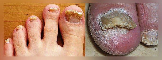 Запущенный ногтевой грибок