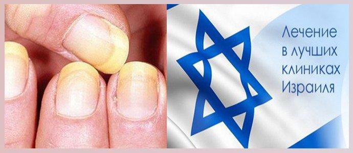 Лечение грибка ногтей в Израиле