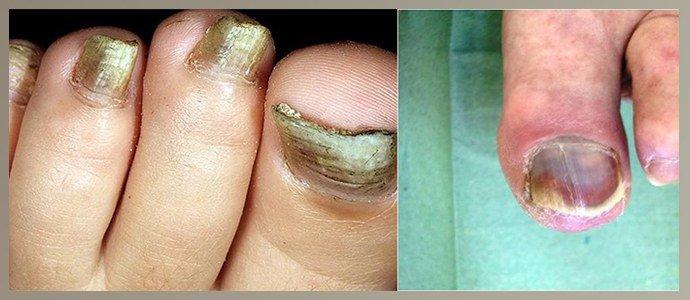 Потемнение ногтей при сахарном диабете