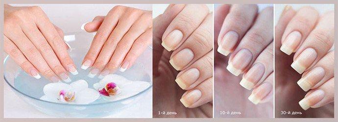 Восстановление ногтей после грибка