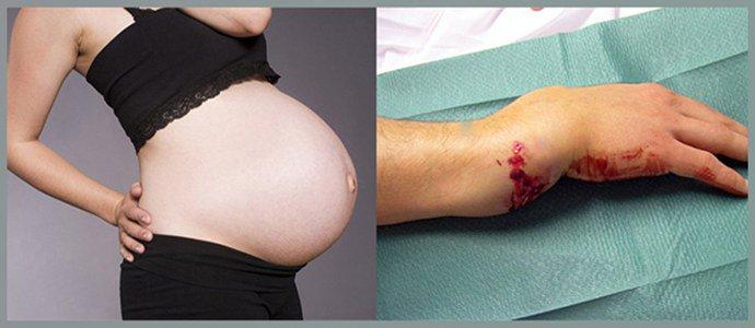 Беременность, открытые раневые поверхности