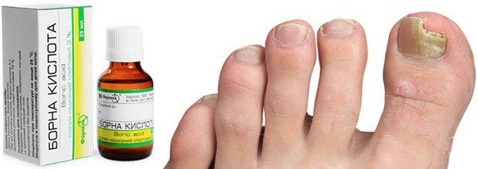 Борная кислота от грибка ногтей