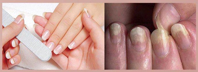 Грибковая инфекция после наращивания ногтей