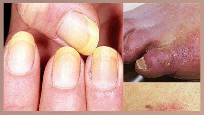 Микосептин от грибка ногтей: инструкция по применению, цена, отзывы