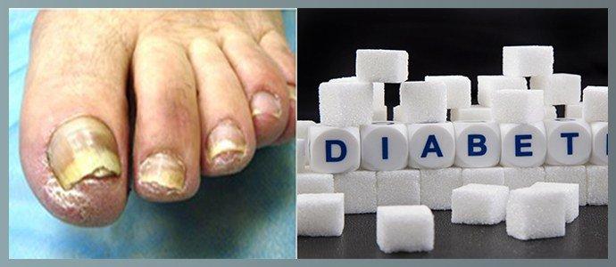 Грибок ногтей при диабете