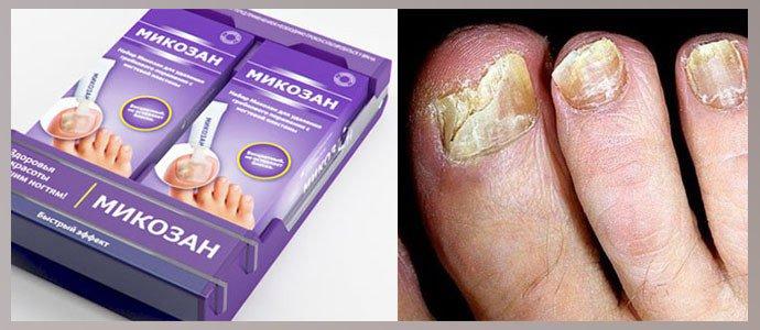 Микозан при поражении ногтевой пластины