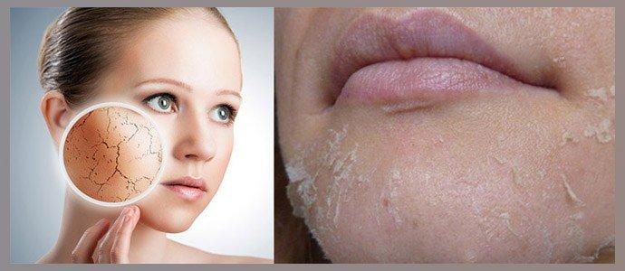 Повышеная сухость и шелушение кожи
