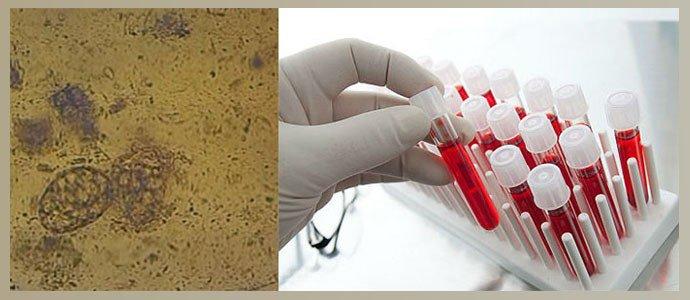 Анализ кала на глисты, общий анализ крови