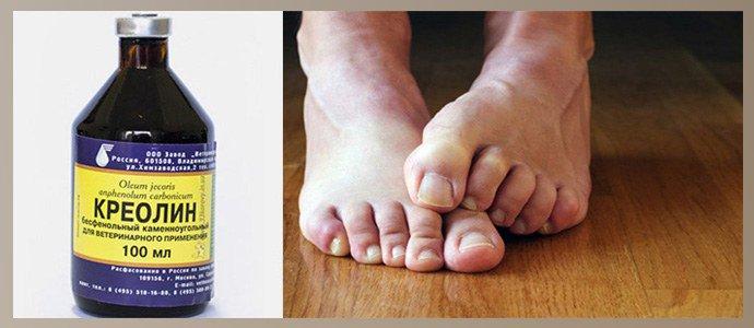 Креолин от грибка ногтей
