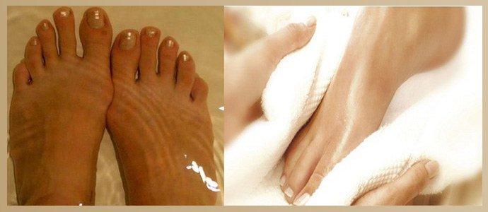 Распарить стопы и просушить полотенцем