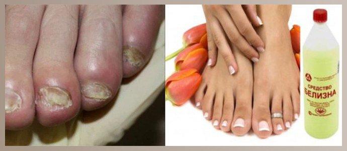 Белизна от грибка ногтей