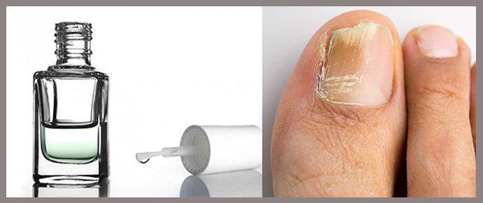 Лак от грибка ногтей