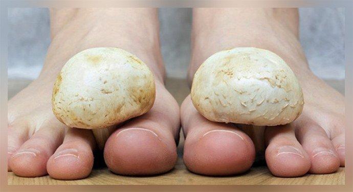 Причины грибка ногтей