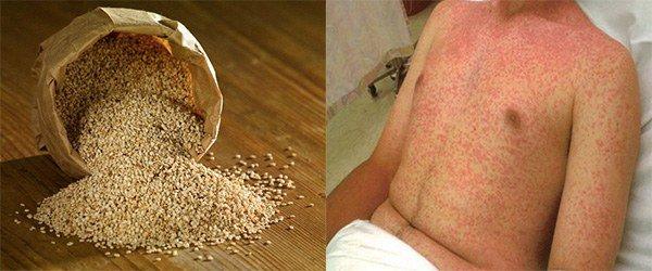 аллергия на кунжут