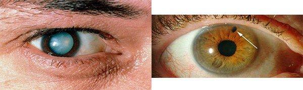 кактаракта