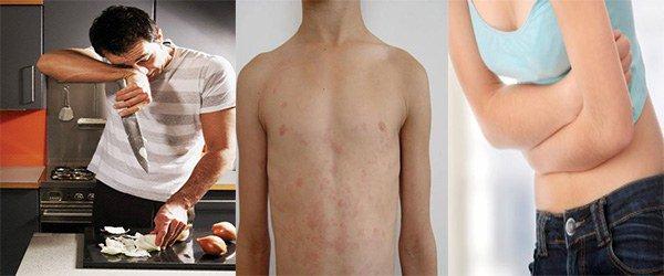 симптомы аллергии на лук