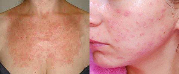сыпь при аллергии