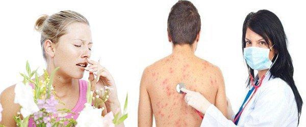 аллергический ринит, крапивница