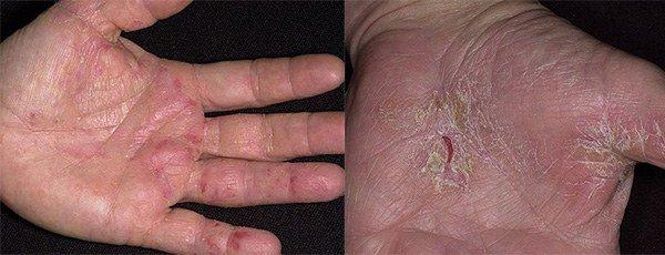 признаки аллергии на ладонях