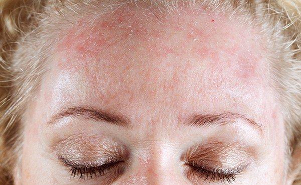 аллергические высыпания в области лба