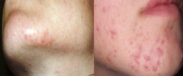проявление аллергии на подбородке