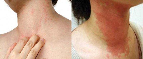 проявление аллергии на шее
