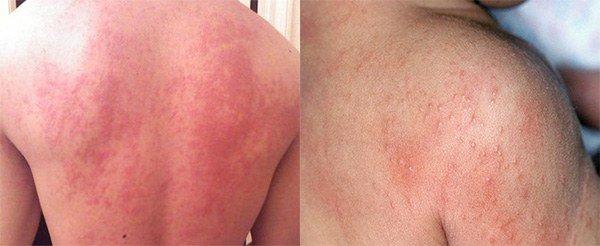 аллергия на спине признаки