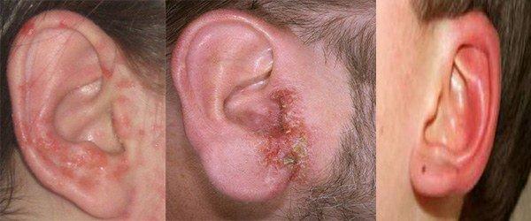 проявление аллергии на ушах