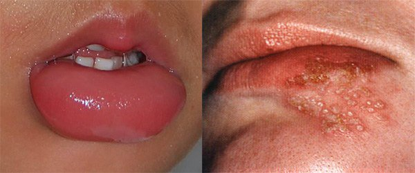 признаки аллергии на губах