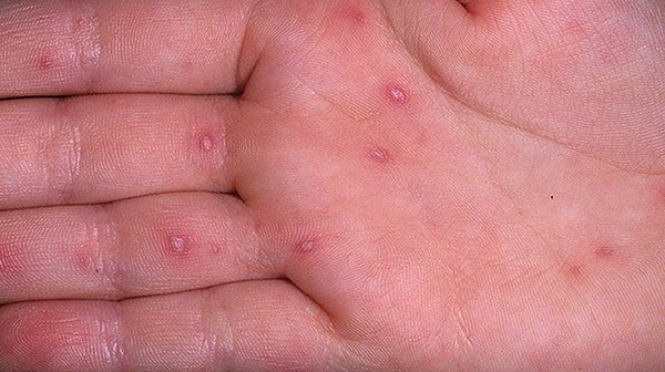 водянистые пузыри на руках
