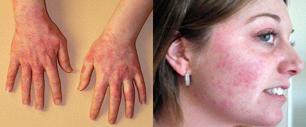 аллергия от мыла на руках и лице