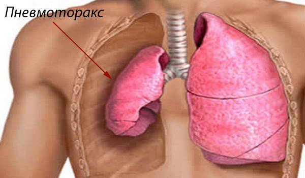 пневмоторакс