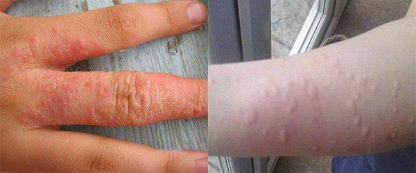 проявление аллергии на порошок в области рук