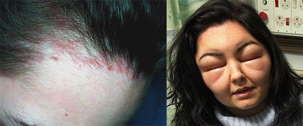 дерматит и отек при аллергии на краску
