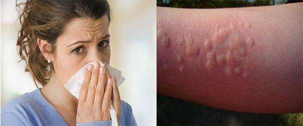 проявление аллергии на крапиву