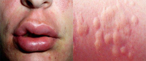 проявление аллергии на пенициллин