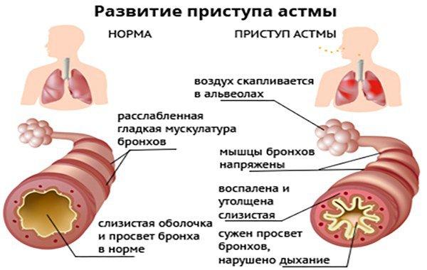 механизм развития астмы