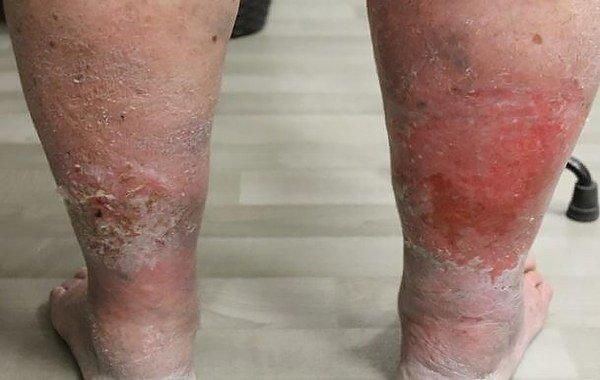 проявление варикозного дерматита нижних конечностей