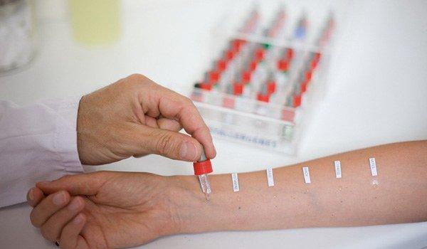 проведение аллергологических тестов