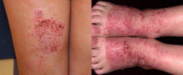 экзематозный дерматит на ногах