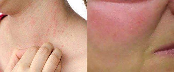 проявление аллергии на клюкву